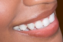 Happy Smiles Dental Office in Chicago IL