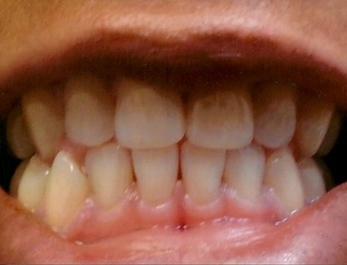 TEETH WITH DISCOLORATION AND STAINING BEFORE TREATMENT