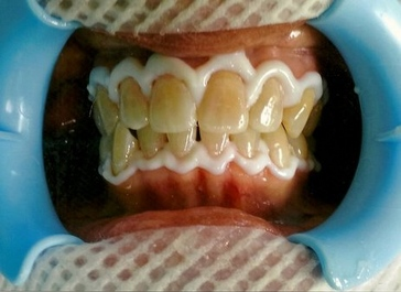 PATIENT PREPARED FOR ZOOM WHITENING