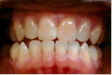 TEETH ONE WEEK AFTER ZOOM WHITENING