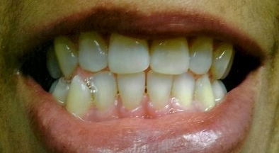 TEETH 3 WEEKS AFTER ZOOM WHITENING