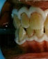 MOUTH PREPARED FOR ZOOM WHITENING (NOTICE TOOTH DISCOLORATION)